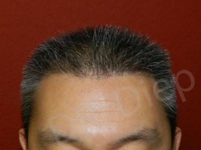 18-receding-hairline-after.jpg