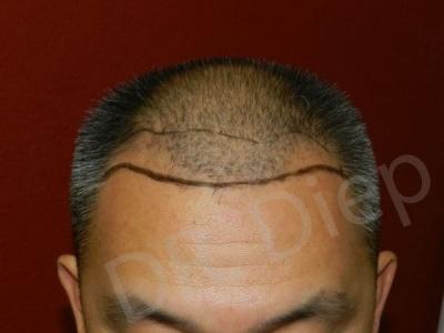 18-receding-hairline-before.jpg