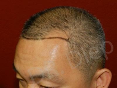19-receding-hairline-before.jpg