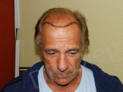 20-receding-hairline-before.jpg