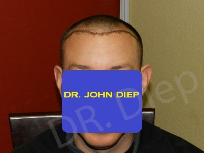 24-receding-hairline-before.jpg