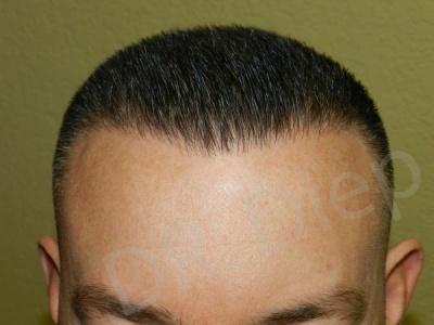 25-receding-hairline-after.jpg