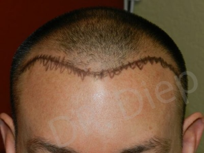 25-receding-hairline-before.jpg