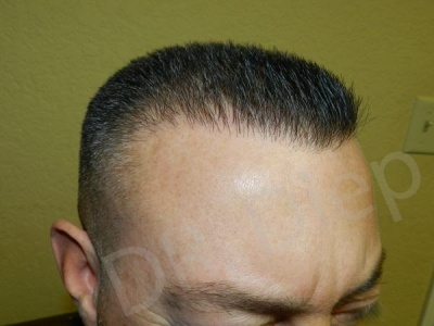 26-receding-hairline-after.jpg