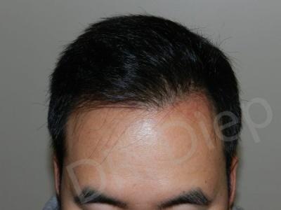 28-receding-hairline-after.jpg