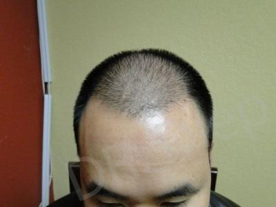 28-receding-hairline-before.jpg