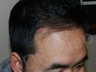 29-receding-hairline-after.jpg