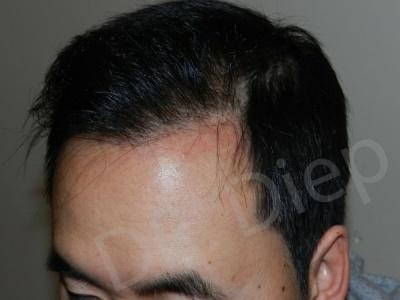 30-receding-hairline-after.jpg