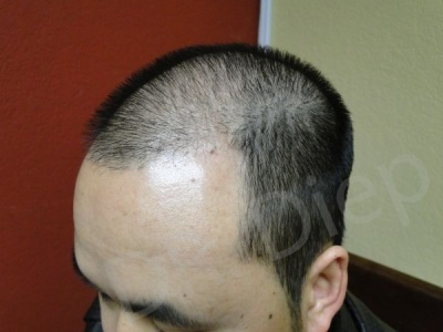 30-receding-hairline-before.jpg