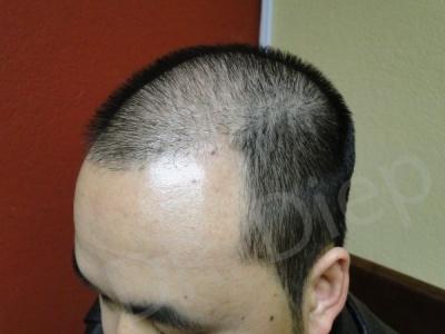30-receding-hairline-before.jpg