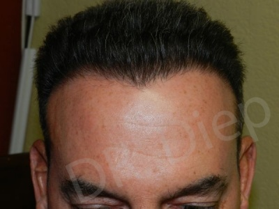 31-receding-hairline-after.jpg
