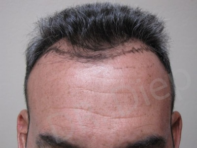 31-receding-hairline-before.jpg