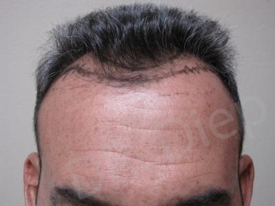 31-receding-hairline-before.jpg