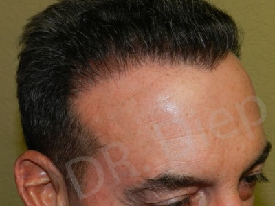 32-receding-hairline-after.jpg