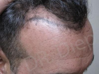 32-receding-hairline-before.jpg
