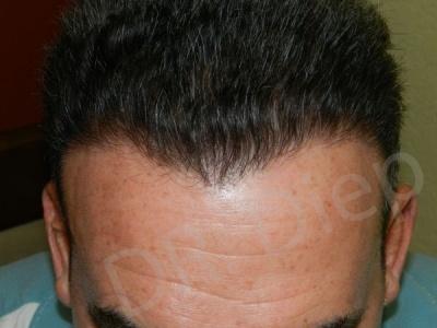 34-receding-hairline-after.jpg