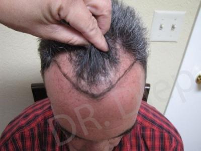 34-receding-hairline-before.jpg