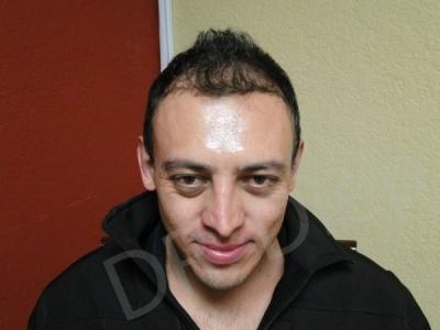 35-receding-hairline-before.jpg