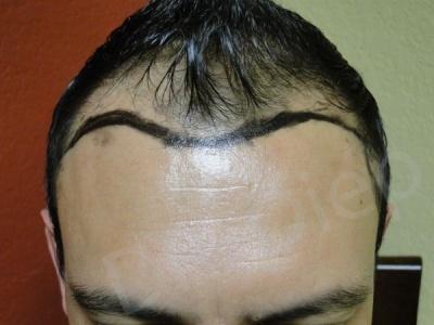 36-receding-hairline-before.jpg