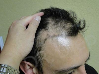 37-receding-hairline-before.jpg