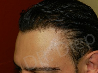 38-receding-hairline-after.jpg
