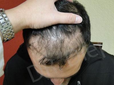 39-receding-hairline-before.jpg