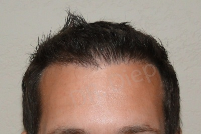 40-receding-hairline-after.jpg