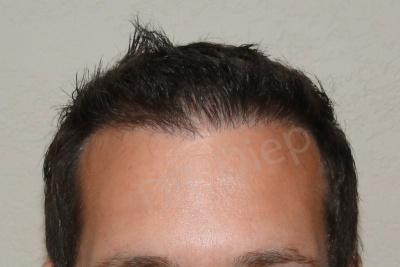 40-receding-hairline-after.jpg