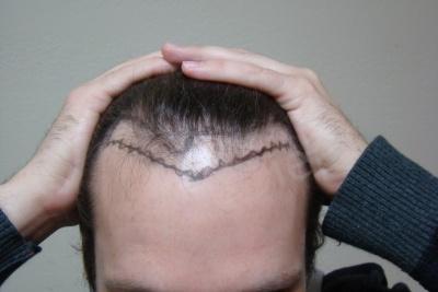 40-receding-hairline-before.jpg