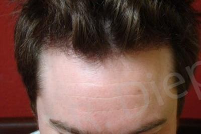 41-receding-hairline-after.jpg