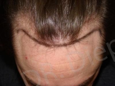 41-receding-hairline-before.jpg