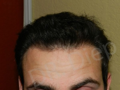 42-receding-hairline-after.jpg