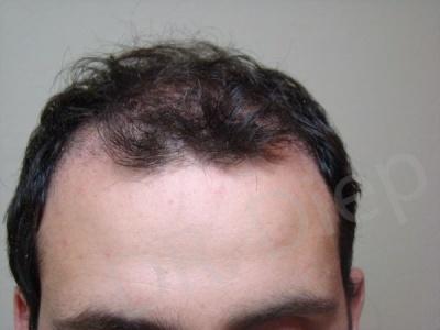 42-receding-hairline-before.jpg