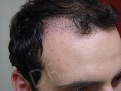 43-receding-hairline-before.jpg