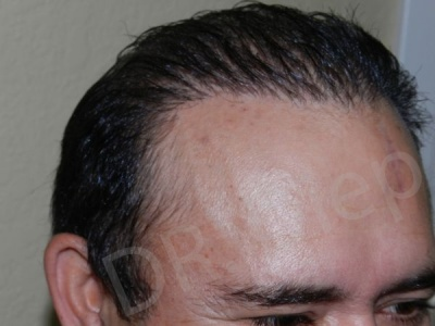 47-receding-hairline-after.jpg