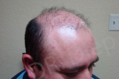 47-receding-hairline-before.jpg
