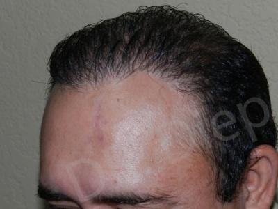 48-receding-hairline-after.jpg