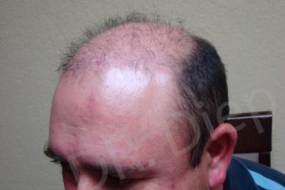 48-receding-hairline-before.jpg