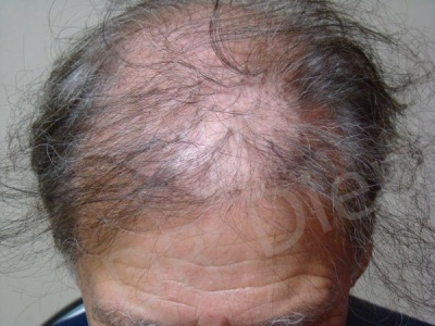 4-hair-plug-corrective-procedure-before.jpg