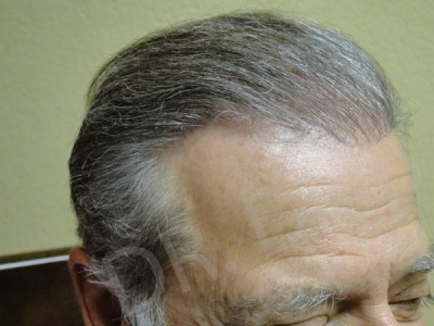 5-hair-plug-corrective-procedure-after.jpg