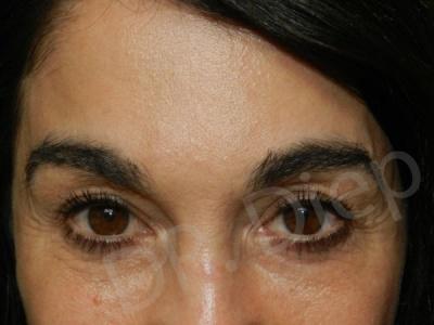 1b-eyebrow-enhancements-replacement-after.jpg