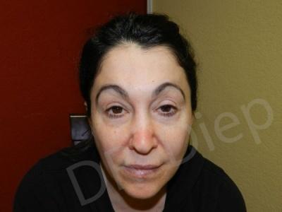 2c-eyebrow-enhancements-replacement-before.jpg