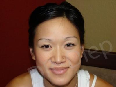 3c-eyebrow-enhancements-replacement-before.jpg