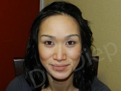 3b-eyebrow-enhancements-replacement-after.jpg