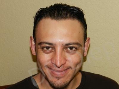 4c-eyebrow-enhancements-replacement-after.jpg