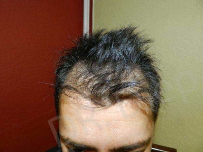 12 Before Hair Surgery Treatment