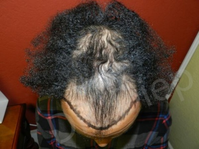 32-afro-american-hair-loss-before.jpg
