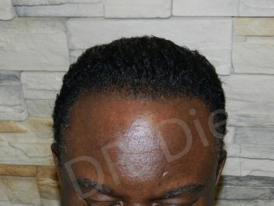34-afro-american-hair-loss-after.jpg