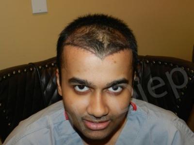 92-receding-hairline-before.jpg