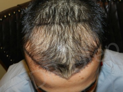 93-receding-hairline-before.jpg